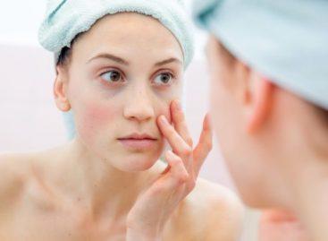 5 truques para melhorar o aspecto visual da pele cansada