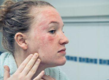 Mau uso de substância na pele pode causar irritabilidade, coceira e até queimadura