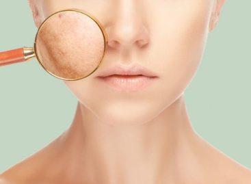 3 dicas de especialistas para acalmar a pele estressada: cuidados e tratamentos