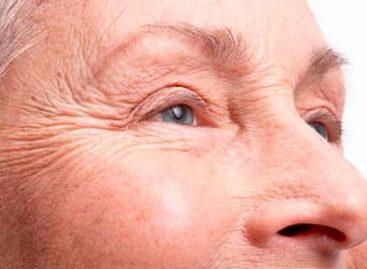 Será possível evitar as rugas que surgem em volta dos olhos? Veja algumas dicas