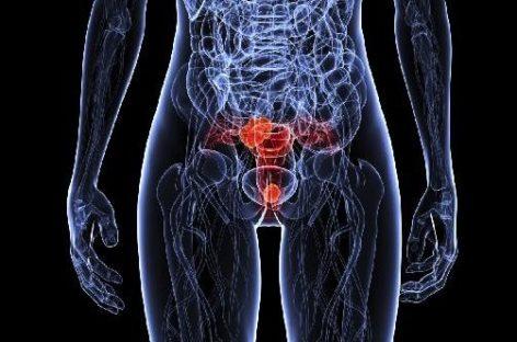 Apareceu um mioma uterino no exame de ultrassom: e agora?