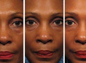 Dá pra rejuvenescer até 3 anos com exercícios faciais